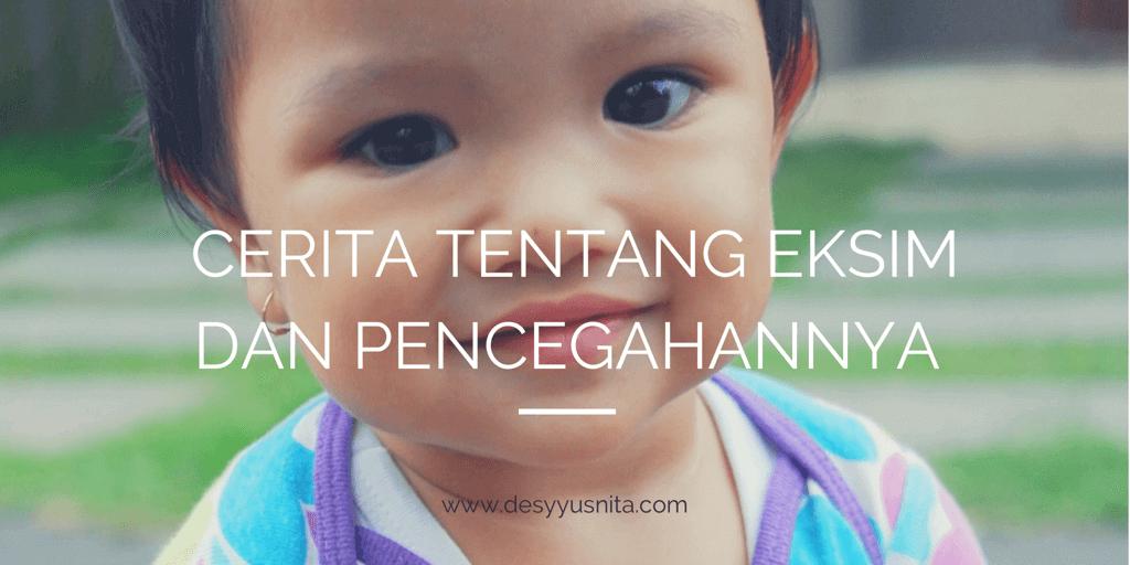 Eksim, Perawatan Kulit Bayi, Perawatan Kulit Anak, SensiCare, Cussons Baby