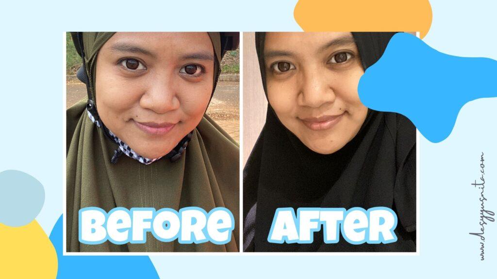 Before-After Setelah 3 Minggu Perawatan di Dermies