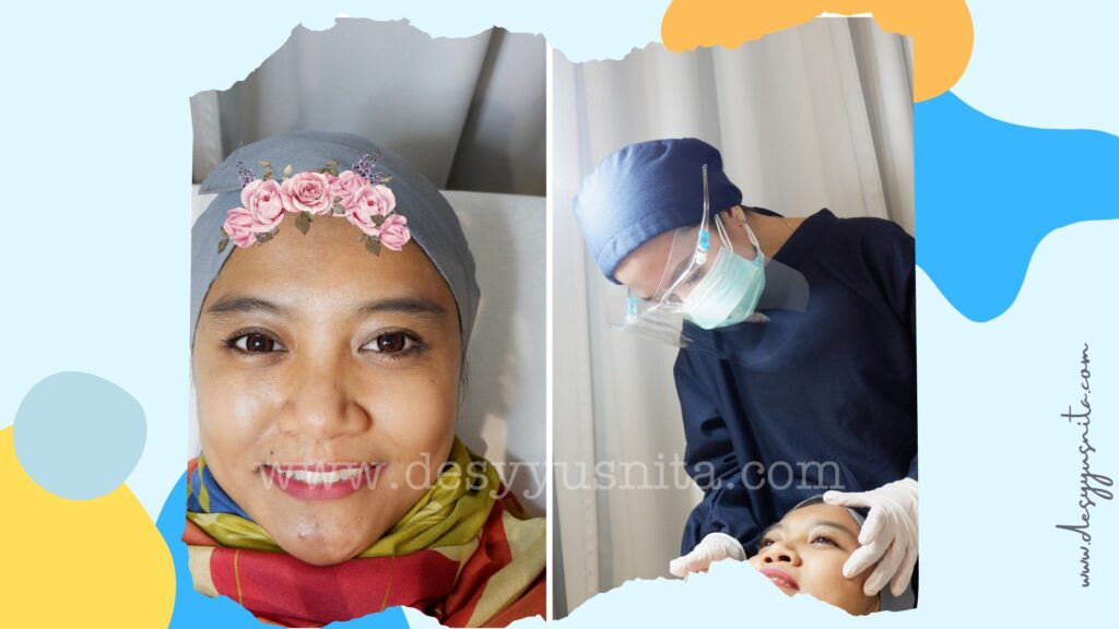 Pengecekan Kondisi Kulit Wajah Sebelum Perawatan